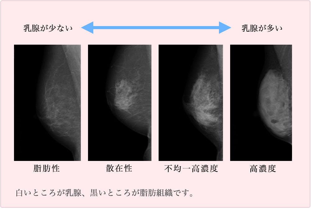 マンモグラフィーでの乳腺の種類
